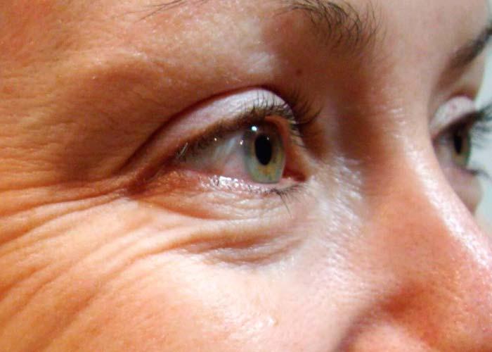 морщины под глазами - избавляемся остеопатией